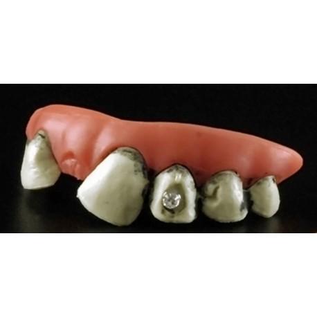 dentier-partie-du-haut-dents-pourries-avec-1-diam-s