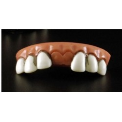 dentier-grosses-dents-manque-les-2-dents-de-devant