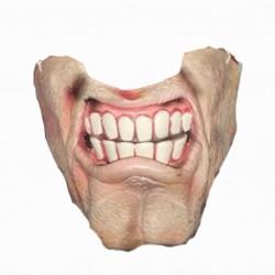 bas-de-visage-machoire-ganache-grosses-dents